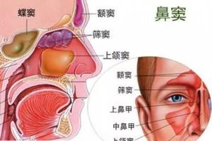 厚朴科普什么是鼻窦癌应该怎样医治