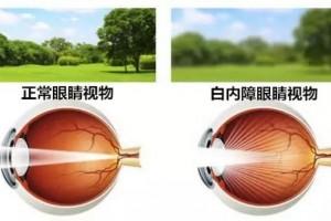 双眼晶状体也随之变得污浊于是就呈现了老年人常见的白内障自查很要害