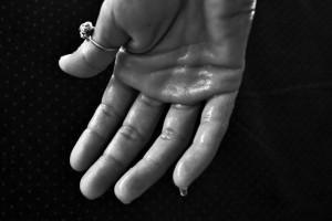 原发性多汗症怎么治疗如何预防原发性多汗症
